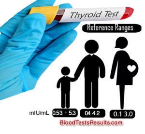 TSH normal ranges
